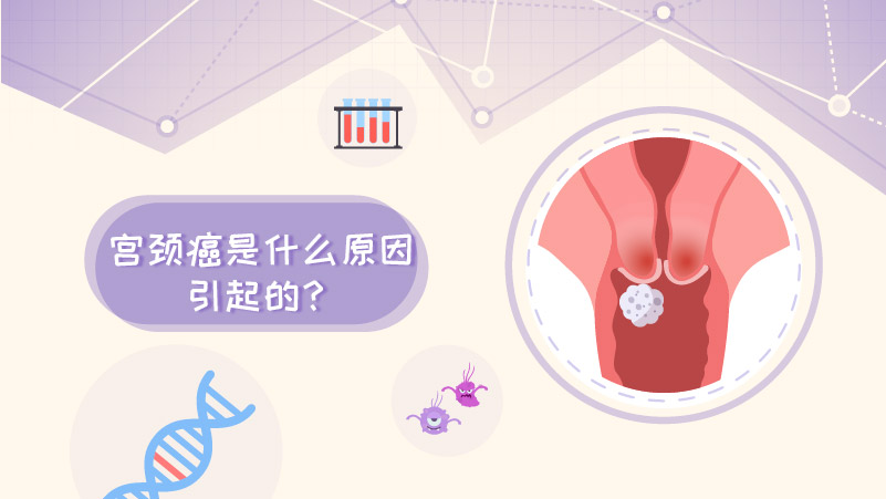 宫颈癌的病因有哪些?