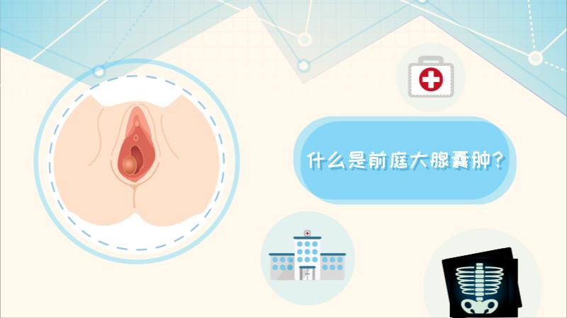 什么是前庭大腺囊肿?