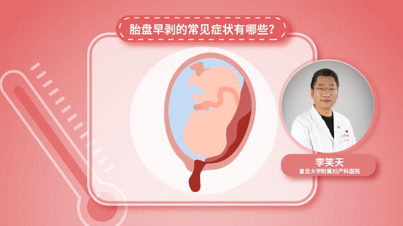 胎盘早剥的症状有哪些?