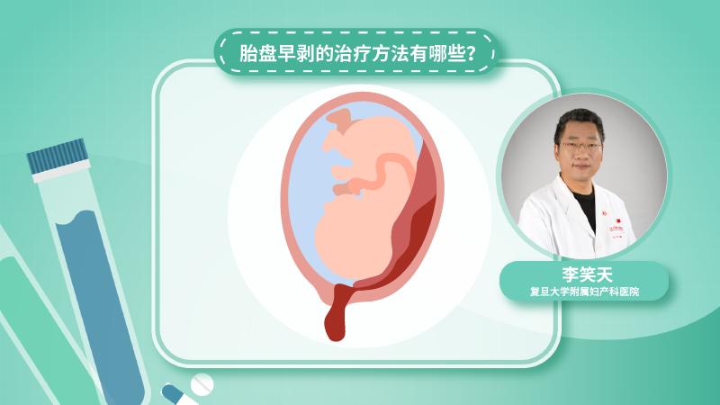 胎盘早剥的治疗方法有哪些?